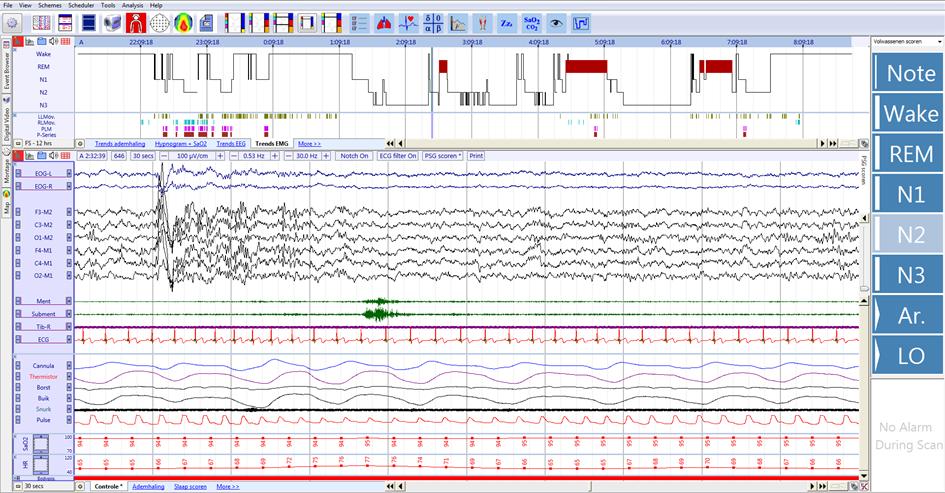 Sleep Data Processing - Introduction - OSG bvba